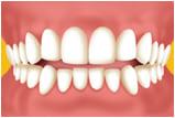 江東区東雲、豊洲の歯医者のキャナルコート歯科クリニック 矯正歯科 叢生(八重歯、乱ぐい歯、凸凹、ガタガタ)