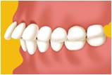 江東区東雲、豊洲の歯医者のキャナルコート歯科クリニック 矯正歯科 上顎前突(出っ歯)