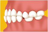 江東区東雲、豊洲の歯医者のキャナルコート歯科クリニック 矯正歯科 下顎前突(受け口)