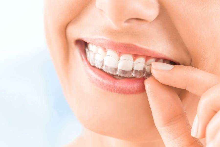 江東区東雲、豊洲の歯医者のキャナルコート歯科クリニック インビザライン矯正