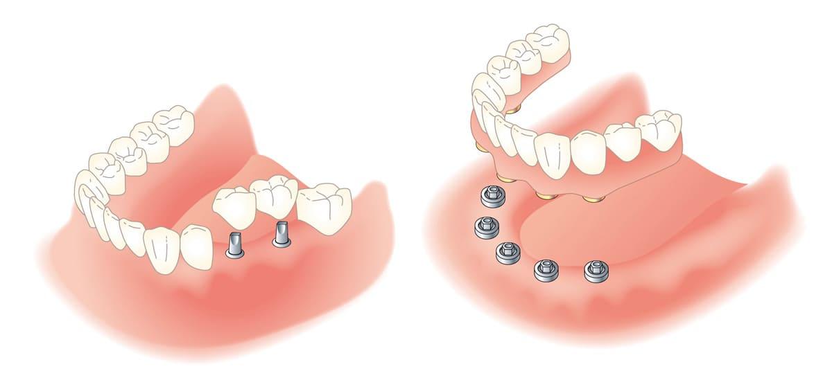 江東区東雲、豊洲の歯医者のキャナルコート歯科クリニック 義歯・入れ歯 インプラントデンチャー