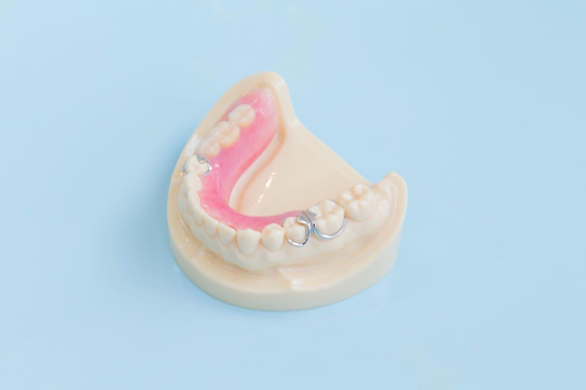 江東区東雲、豊洲の歯医者のキャナルコート歯科クリニック 義歯・入れ歯