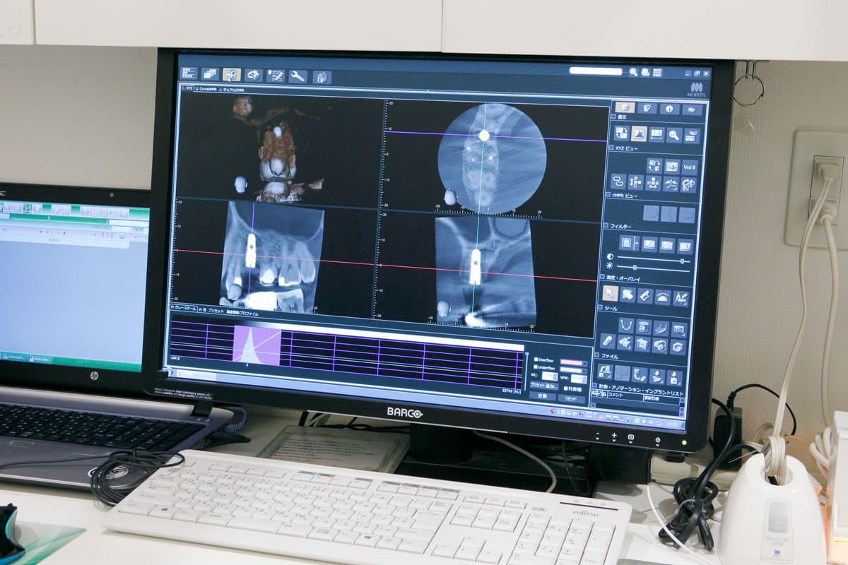 江東区東雲、豊洲の歯医者のキャナルコート歯科クリニック 3Dで見れる歯科用CT