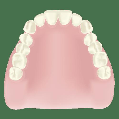 江東区東雲、豊洲の歯医者のキャナルコート歯科クリニック 義歯・入れ歯 レジン床