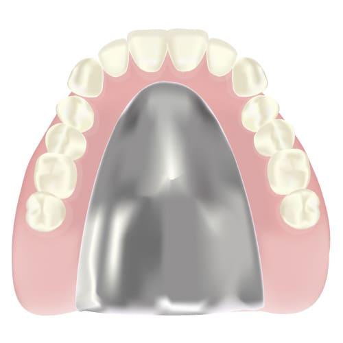江東区東雲、豊洲の歯医者のキャナルコート歯科クリニック 義歯・入れ歯 金属床(きんぞくしょう)