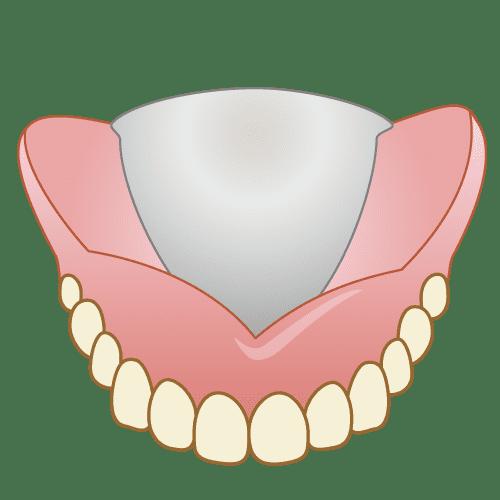 江東区東雲、豊洲の歯医者のキャナルコート歯科クリニック 義歯・入れ歯 金属床義歯