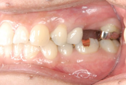 インプラント症例 左上6