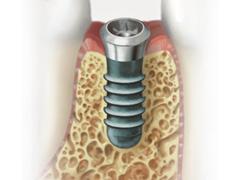 インプラント治療の流れ Step 3. 結合期間(2~6か月)